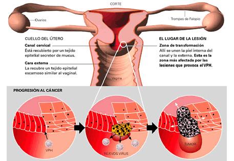 cancer al utero sintomas